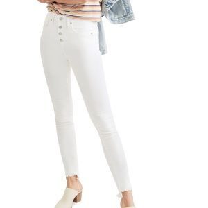 Madewell 10-Inch High Waist Button Front Ankle